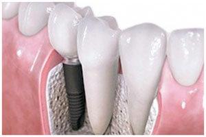 Цены на имплантация зубов