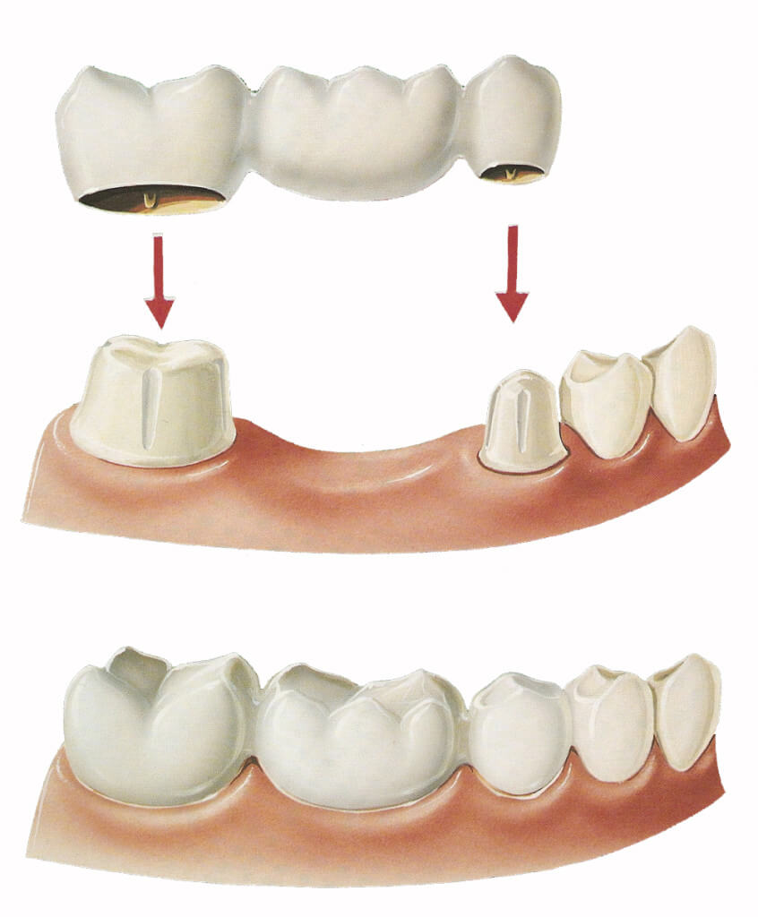 Crowns-and-Bridges-Dentist