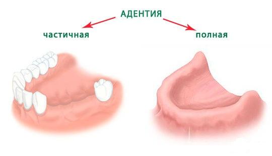 adentija1