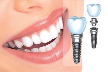 Имплантация одного или нескольких зубов